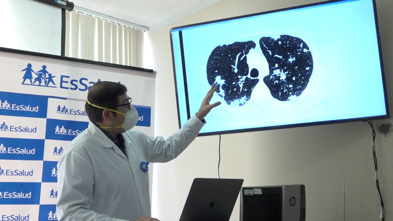 Essalud - EsSalud implementará plan de control posterior a pacientes Covid-19 dados de alta