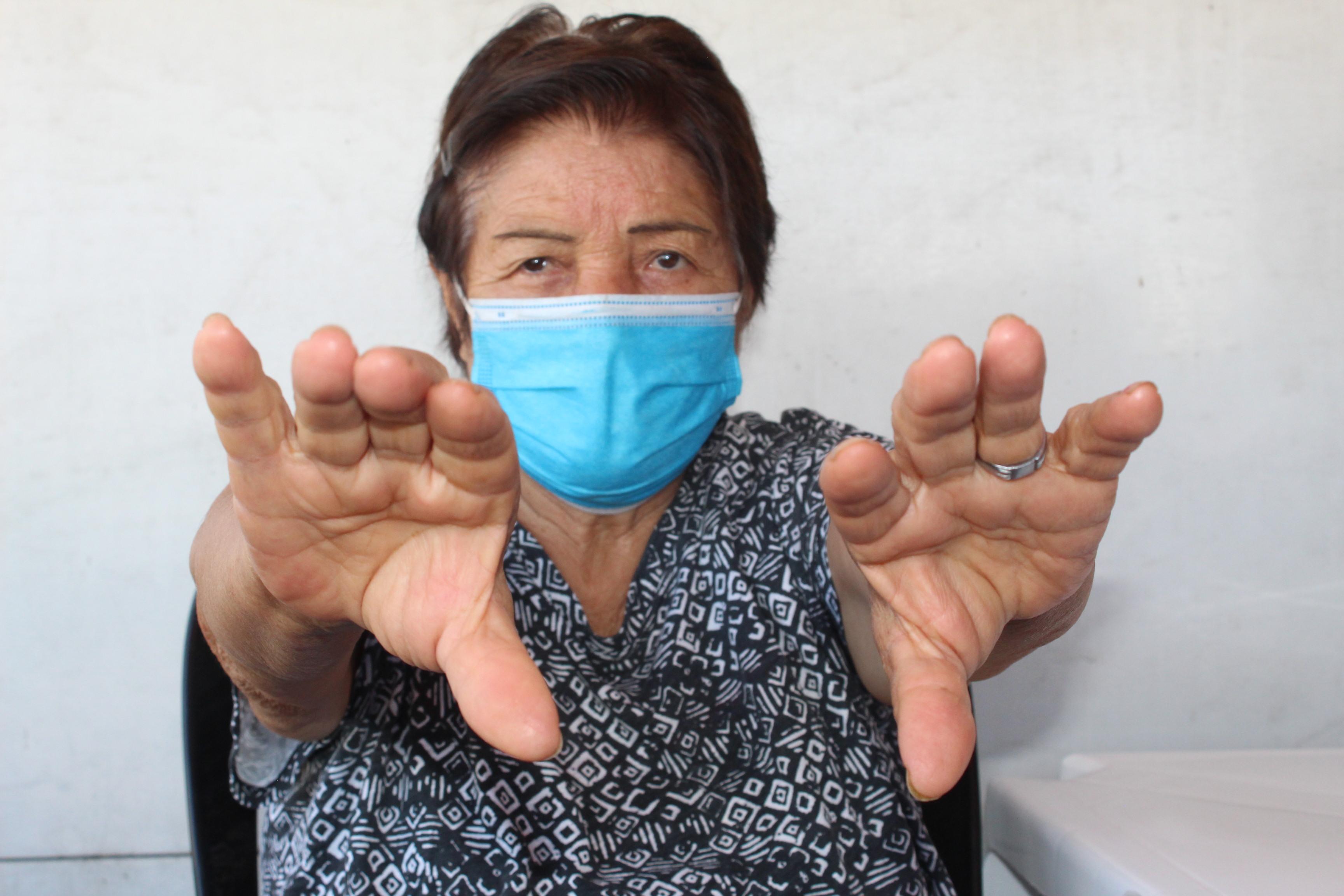 EsSalud advierte que temblor de las manos en reposo y pasos cortos al caminar podrían ser el comienzo de la enfermedad de Parkinson.