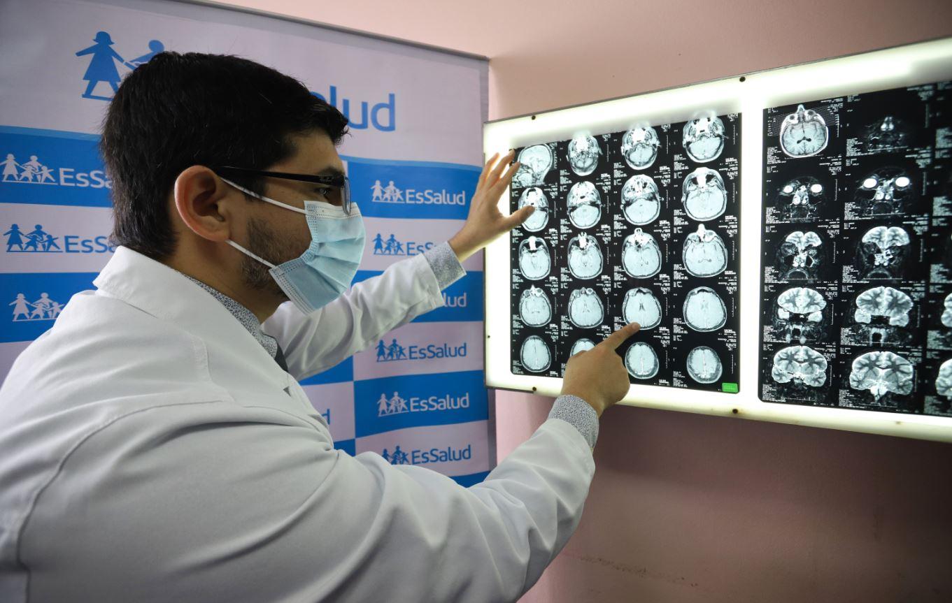 EsSalud advierte que  cefalea tensional, cuadros de ansiedad, depresión y fatiga crónica se incrementan durante la pandemia